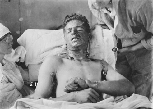 Mustard gas burns. Creative Commons.